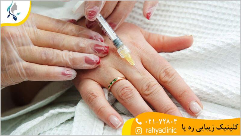 تزریق ژل به دست