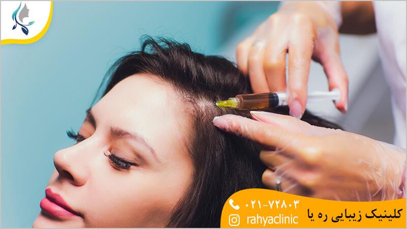 درمان ریزش مو با پی آر پی