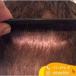 بانک مو و گرافت مو چیست