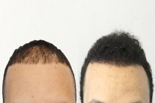 کاشت مو مصنوعی